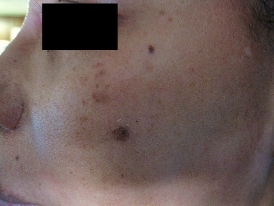 PHOTO OF WITNESS SHOWING FACIAL BURNS FROM ABDUCTION.
