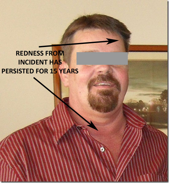 RECENT PHOTO OF WITNESS SHOWING REDNESS WHICH HAS PERSISTED FOR 15 YEARS.
