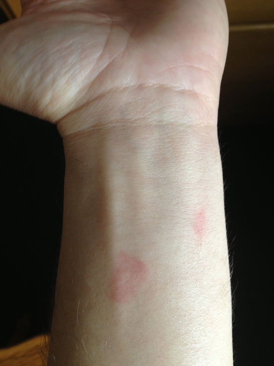 PHOTO OF MARKS ON WRIST TAKEN MORNING AFTER ENCOUNTER.