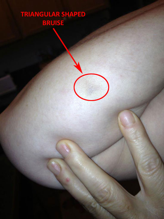"TRAINGULAR BRUISE FOUND BY WITNESS AFTER ""STRANGE"" EXPERIENCE."