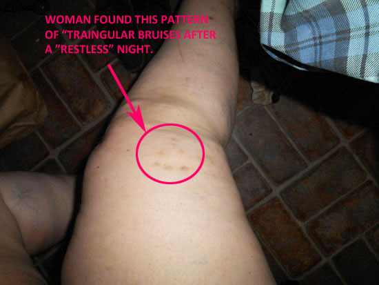 WOMAN WHO HAS HAD STRANGE EXPERIENCES FINDS THIS PATTERN OF TRAINGULAR BRUISES AFTER RESTLESS NIGHT.