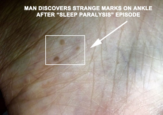 PHOTO OF STRANGE MARKS ON ANKLE THAT OCCURRED AFTER SLEEP PARALYSIS EPISODE.