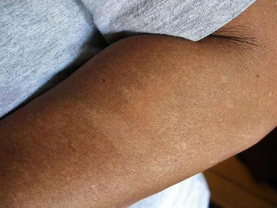 PHOTO OF BLEMISH ON ARM SUSTAINED FROM ABDUCTION EXPERIENCE.