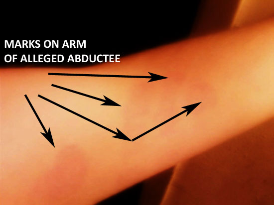 """PHOTO OF """"4 FINGERS"""" ON ARM AS RESULT OF """"ALLEGED"""" ABDUCTION."""
