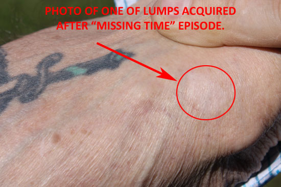"""PHOTO OF HUSBAND'S RIGHT ARM SHOWING THE HARD LUMP ACQUIRED AFTER THE """"MISSING TIME"""" INCIDENT."""