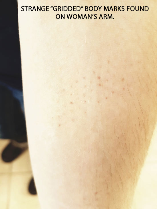 STRANGE GRIDDED BODY MARKS FOUND ON WOMAN'S ARM.