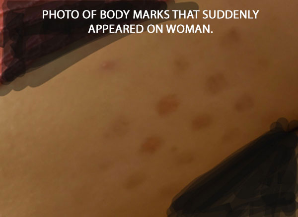 PHOTO OF BODY MARKS THAT SUDDENLY APPEARED ON WOMAN.