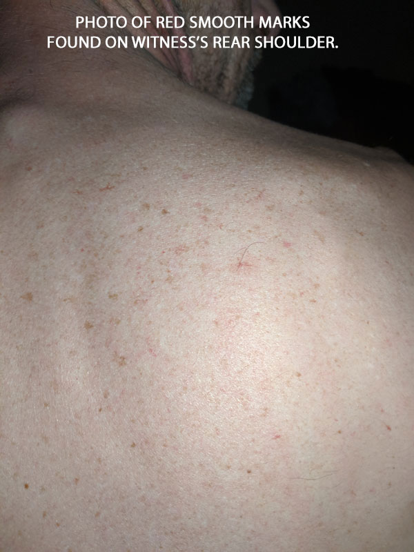 PHOTO OF RED SMOOTH MARKS FOUND ON WITNESS'S REAR SHOULDER.